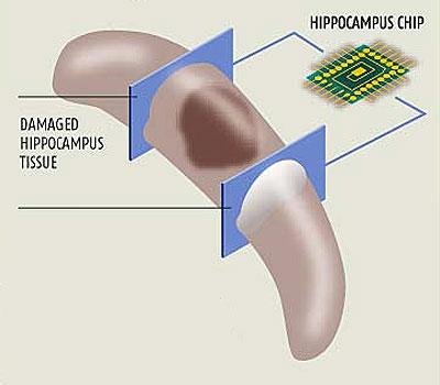 vervangende chip voor Hippocampus