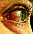 Paranoïde blik