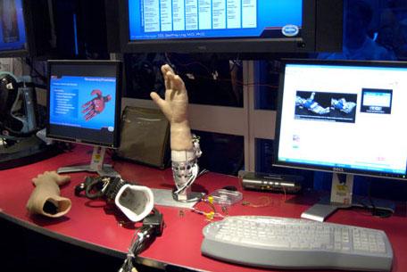 Bionische hand gekoppeld aan computersystemen van de John Hopkins University