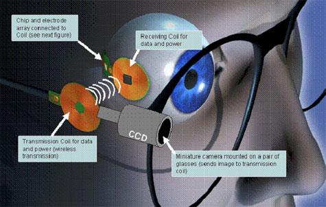 Retina-implantaat van MIT