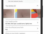 Huidaandoeningen op Google I/O 2021