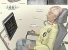 Brein-computer-interface ALS patiente