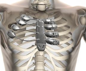 Prothese voor borstkas