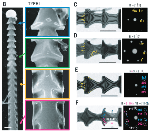 elektronenmicroscoop plaajes spicules mesomateriaal