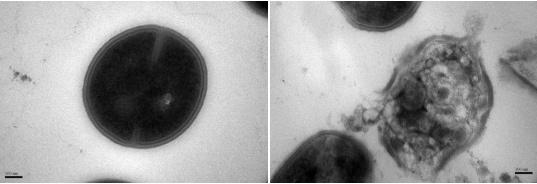 Mrsa-bacterie voor en na effect van nanodeeltjes