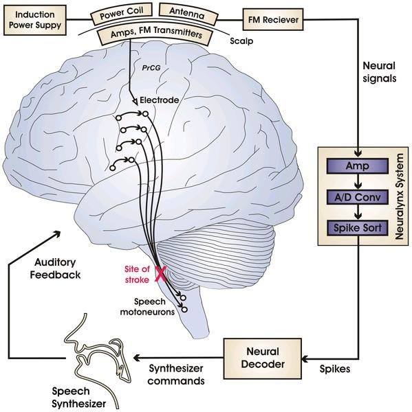 Brein-computerinterface voor spraakherkenning en -synthese