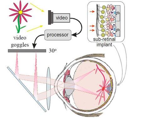 Stanford retinaal implantaat