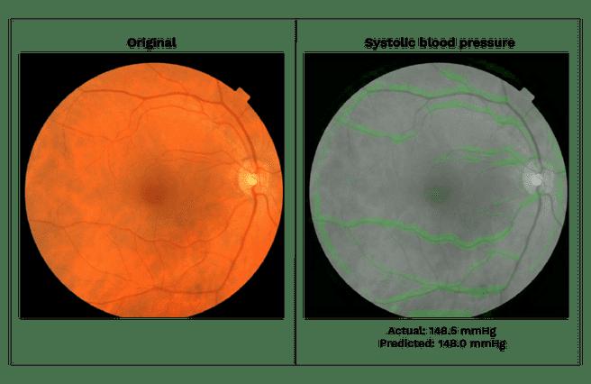 Google onderzoek retina