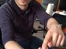 Project Ara: module met bloedwaardemeter