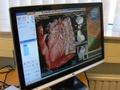 Intel Xeon 5500-introductie: hart-animatie