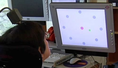 Braingate: het bedienen van een cursor door een breinimplantaat