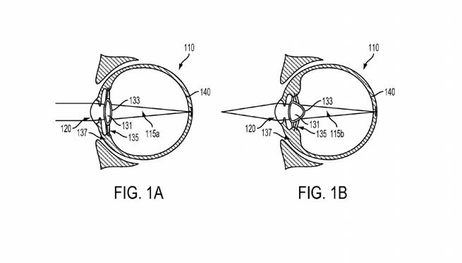 Google-patent implanteerbare lens