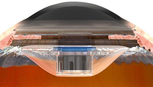 Implanteerbare telescooplens